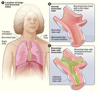 poliartrita reumatoida tratament balnear sovata cazare