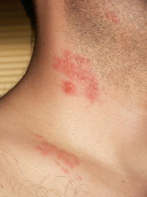 atoderm dermatita atopica imagining